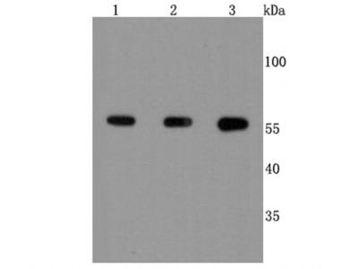 Calcineurin A Antibody