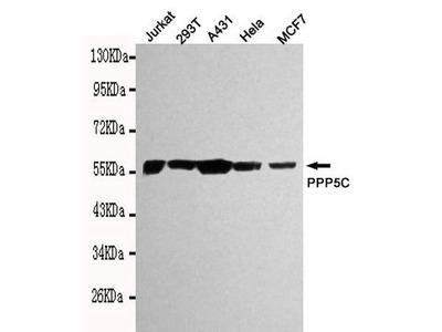 PP5 Monoclonal Antibody (2A9)