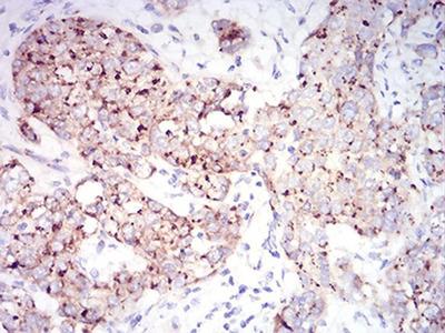 RAB6B Monoclonal Antibody (6D12G9)