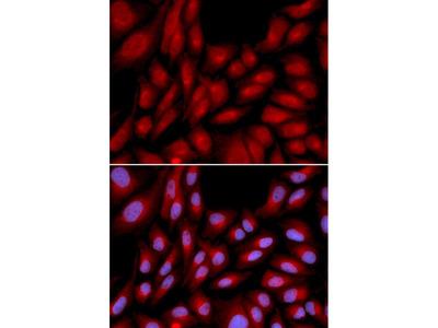 BAG1 Polyclonal Antibody