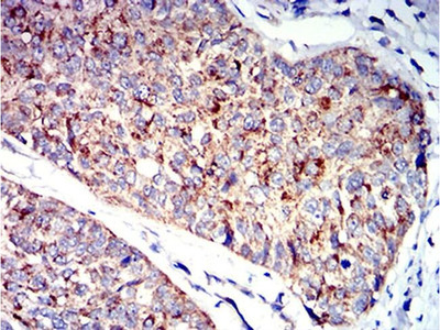 P2Y1 Monoclonal Antibody (4G5B7)