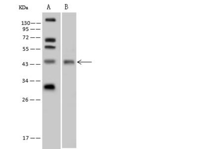 TTF1 Antibody, Rabbit PAb, Antigen Affinity Purified