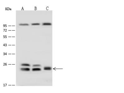 RAB5B Antibody, Rabbit PAb, Antigen Affinity Purified