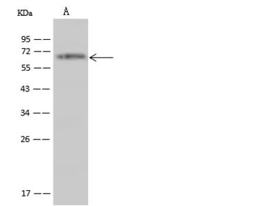 TRIM29 Antibody, Rabbit PAb, Antigen Affinity Purified