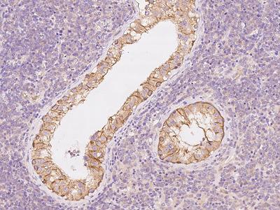 PPP2R1B Antibody, Rabbit PAb, Antigen Affinity Purified