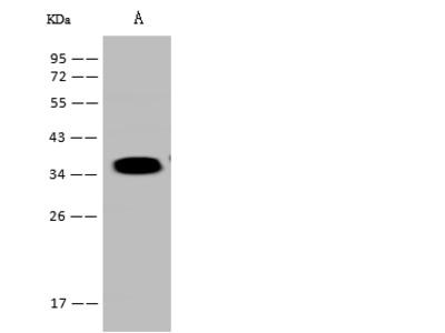 TNNT3 Antibody, Rabbit PAb, Antigen Affinity Purified