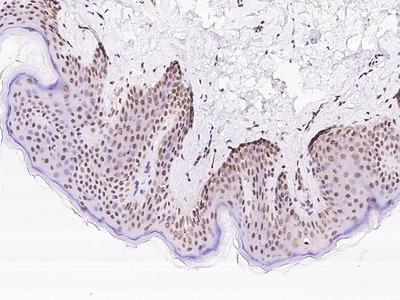 KPNA4 Antibody, Rabbit PAb, Antigen Affinity Purified