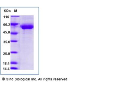 Human SIGLEC15 Protein (Fc Tag)