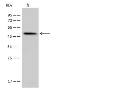 SLC35E1 Antibody, Rabbit PAb, Antigen Affinity Purified