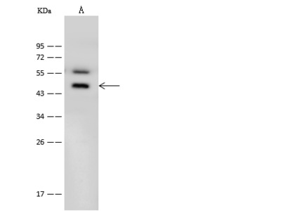 BDKRB1 Antibody, Rabbit PAb, Antigen Affinity Purified