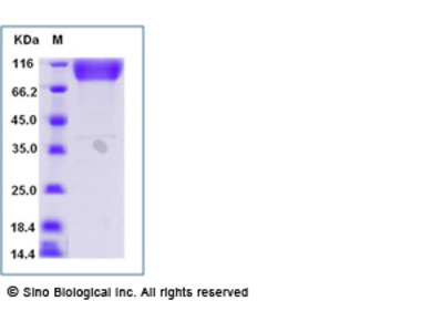 Human ICAM-1 / CD54 Protein (Fc Tag)