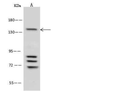 ATXN2/ATX2 Antibody, Rabbit PAb, Antigen Affinity Purified