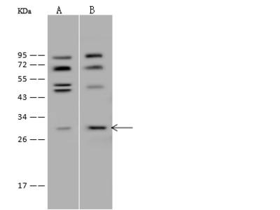 HDHD2 Antibody, Rabbit PAb, Antigen Affinity Purified