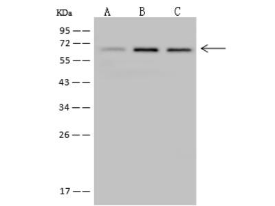 MEF2D Antibody, Rabbit PAb, Antigen Affinity Purified