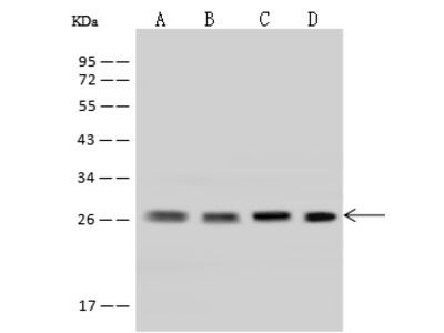 UBE2S Antibody, Rabbit PAb, Antigen Affinity Purified