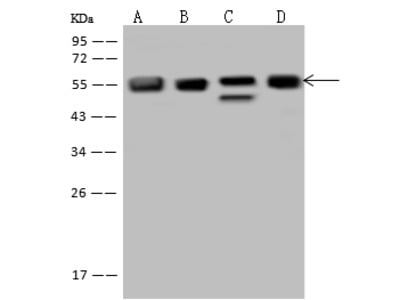 FKBP5/FKBP51 Antibody, Rabbit PAb, Antigen Affinity Purified