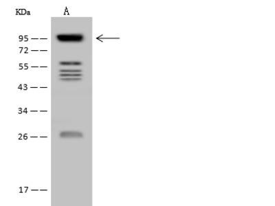 VPS53 Antibody, Rabbit PAb, Antigen Affinity Purified