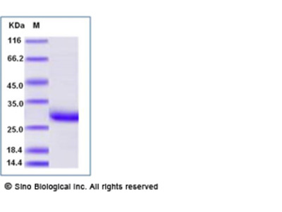 Human CRP / C-Reactive Protein, Biotinylated