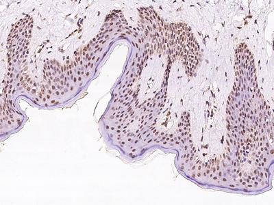 EXOSC7 Antibody, Rabbit PAb, Antigen Affinity Purified