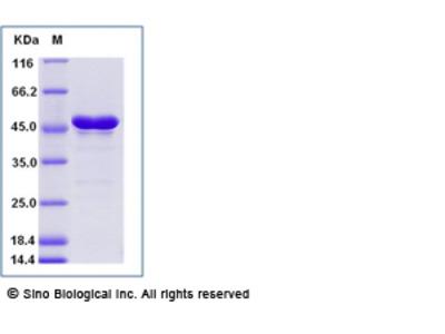 Zika virus (ZIKV) (strain Zika SPH2015) E / Envelope protein (aa 291-696, His Tag)