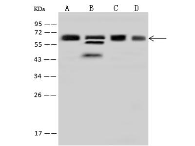HNRNPK Antibody, Rabbit PAb, Antigen Affinity Purified