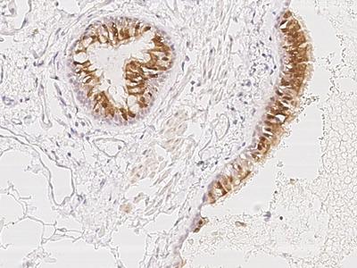 PIH1D3/CXorf41 Antibody, Rabbit PAb, Antigen Affinity Purified