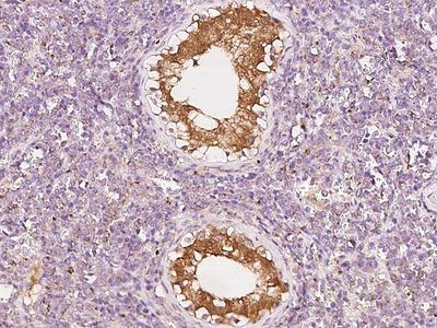 NUDT10 Antibody, Rabbit PAb, Antigen Affinity Purified