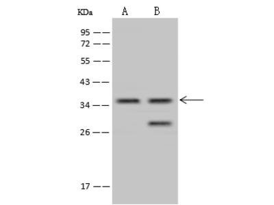 TSEN34 Antibody, Rabbit PAb, Antigen Affinity Purified