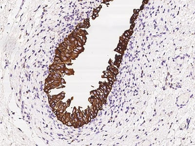 Cytokeratin 17/KRT17 Antibody, Rabbit PAb, Antigen Affinity Purified