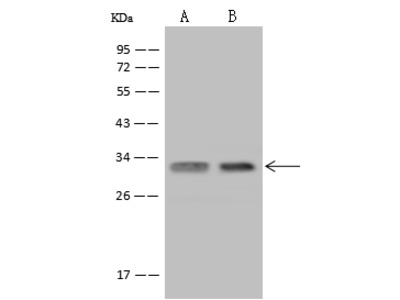 USE1 Antibody, Rabbit PAb, Antigen Affinity Purified