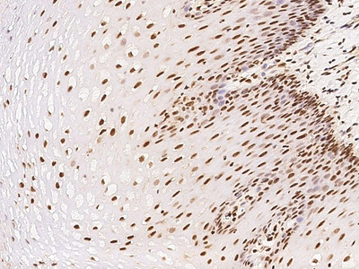 ETV3 Antibody, Rabbit PAb, Antigen Affinity Purified