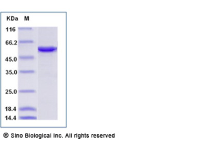 Human SRP54 Protein (His Tag)