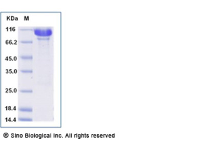 Human AARS / alanyl-tRNA synthetase Protein (His Tag)