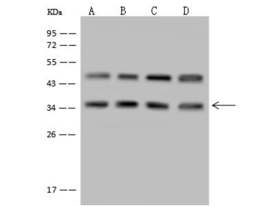 LZTFL1 Antibody, Rabbit PAb, Antigen Affinity Purified