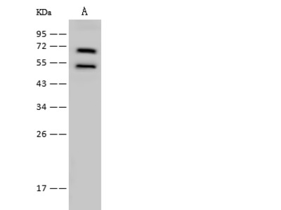 LysRS/Lysyl tRNA synthetase/KARS Antibody, Rabbit PAb, Antigen Affinity Purified