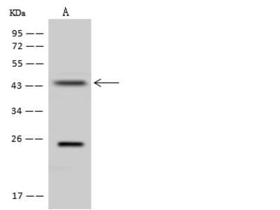 QTRT1 Antibody, Rabbit PAb, Antigen Affinity Purified