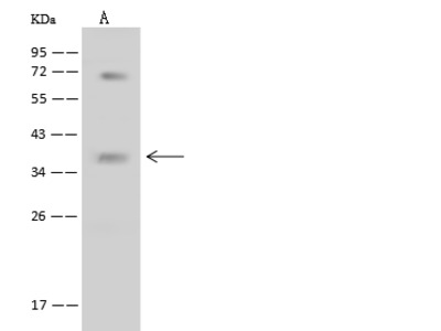 BNIP3L Antibody, Rabbit PAb, Antigen Affinity Purified