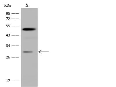 CIDEA Antibody, Rabbit PAb, Antigen Affinity Purified