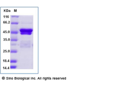 Human SSB Protein (His Tag)