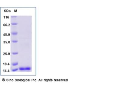 Human PIGF / PLGF / PGF Protein (aa 19-149)