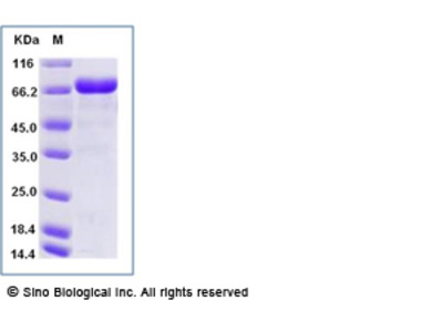 Human LRRC32 Protein (His Tag), Biotinylated