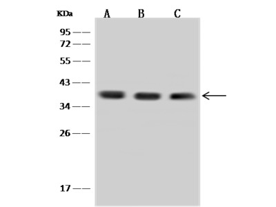 Aprataxin/APTX Antibody, Rabbit PAb, Antigen Affinity Purified