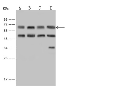 EIF3D Antibody, Rabbit PAb, Antigen Affinity Purified