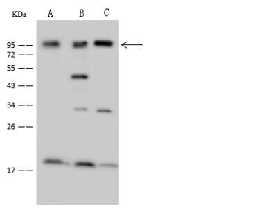 NCAPH Antibody, Rabbit PAb, Antigen Affinity Purified