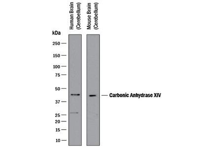 Carbonic Anhydrase XIV / CA14 Antibody