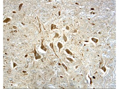NF-L Antibody