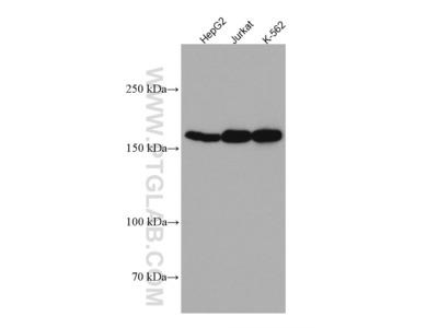 Thrombospondin 1 Monoclonal Antibody