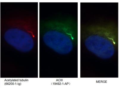 ADCY3 antibody