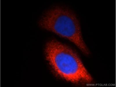 CTBS Polyclonal Antibody