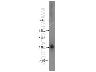 HMGB4 antibody